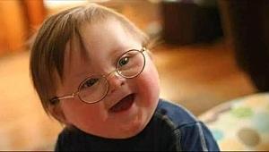 Malatya Barosundan otizmli çocuklarla ilgili açıklama